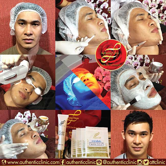 Miracle Acne Essential Treatment