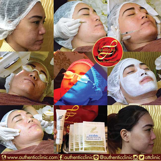 Miracle Acne Essential Treatment 2