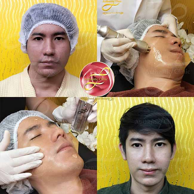 Review Miracle Facial Design web