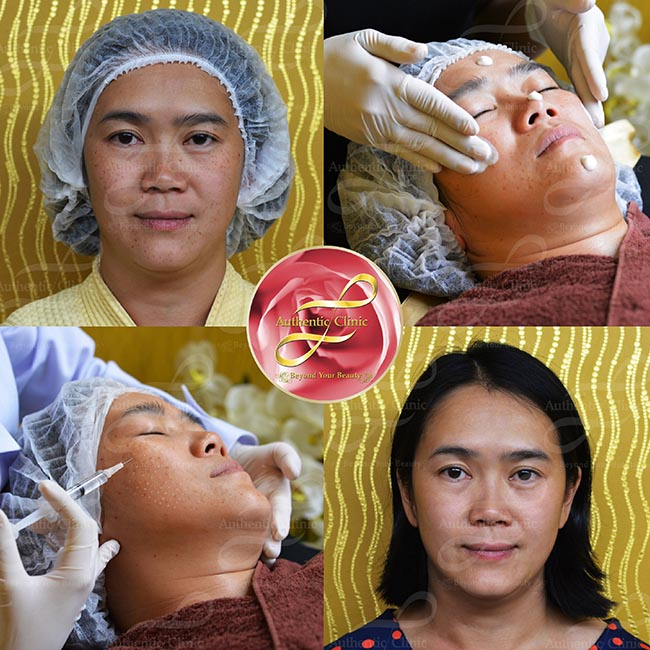 Review Meso Melasma