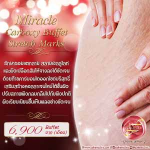 Miracle Carboxy Buffet Stretch Marks Square 300