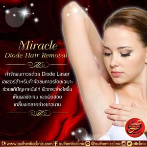 Miracle-Diode-Hair-Removal