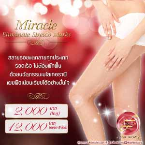 Miracle Eliminate Stretch Marks Square 300