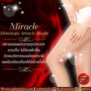 Miracle-Eliminate-Stretch-Marks