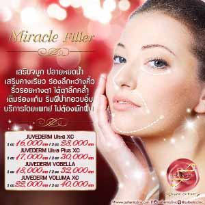 Miracle Filler Square 300