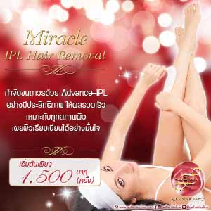 Miracle IPL Hair Removal Square 300