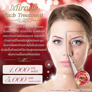 Miracle Rash Treatment Square