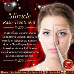 Miracle-Rash-Treatment