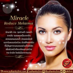Miracle-Reduce-Melasma