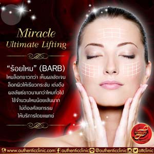 Miracle-Ultimate-Lifting-(BARB)