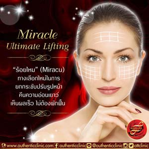 Miracle-Ultimate-Lifting