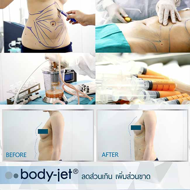 Review body jet3 web