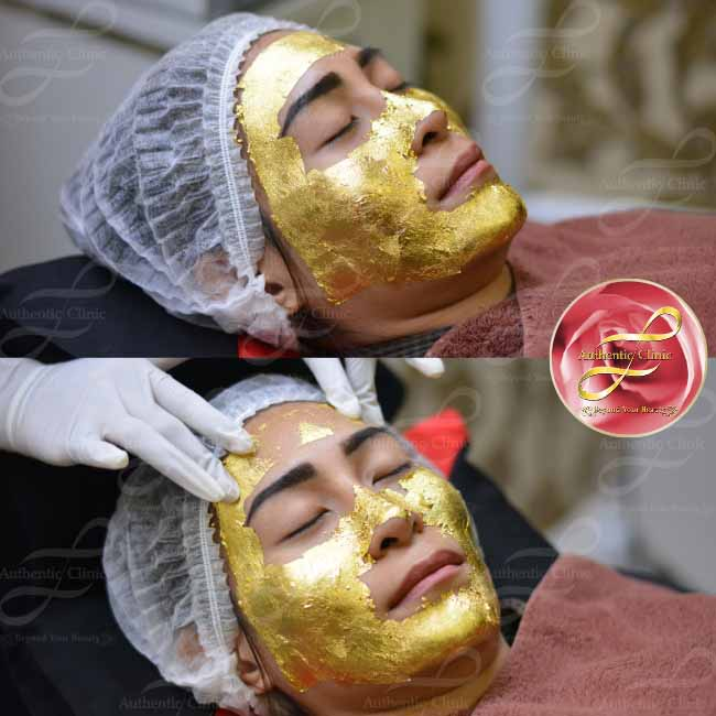 Review Miracle Golden Mask